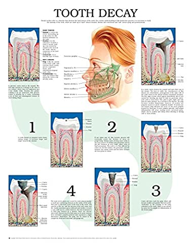 Tooth decay e chart: Full illustrated