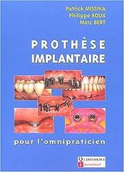 Prothèse implantaire pour l'omnipraticien