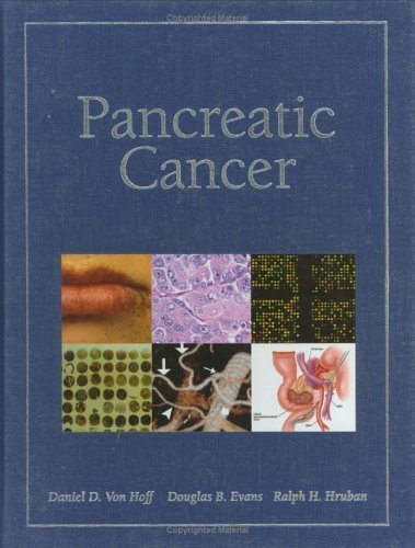 Pancreatic Cancer by Daniel D. Von Hoff (2005-04-10)