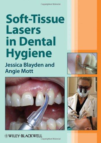 soft-tissue-lasers-in-dental-hygiene