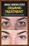 Bags Under Eyes Organic Treatment : How to Get Rid of Bags Under Eyes Fast Naturally