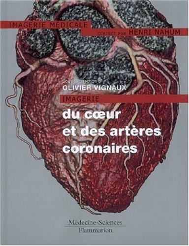 Imagerie du coeur et des artères coronaires