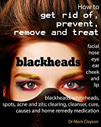 Blackheads: How to get rid of, prevent, remove and treat facial, nose, eye, ear, cheek and lip blackheads, whiteheads, spots, acne and zits; clearing, ... (Embarrassing Health) (English Edition)