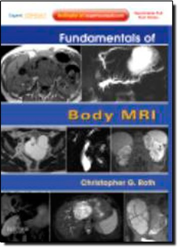 Fundamentals of Body MRI: Expert Consult- Online and Print, 1e (Fundamentals of Radiology) 1 Pap/Psc Edition by Roth MD, Christopher G. (2011) Paperback