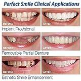 JUTHREE 3 Paires Dent de Remplacement Réutilisable et Amovible, Pose Instantanée de Dents Artificielles Instant Perfect Smile Kit Prothèse Dentaire Supérieure