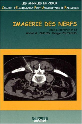 Imagerie des nerfs