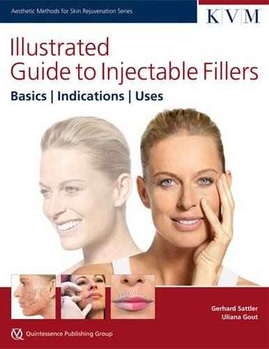 Illustrated Guide to Injectable Fillers: Basics, Indications, Uses (Aesthetic Methods for Skin Rejuvenation)