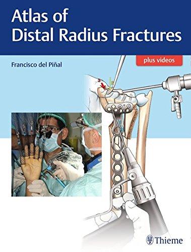 Atlas of Distal Radius Fractures por Francisco del Pinal