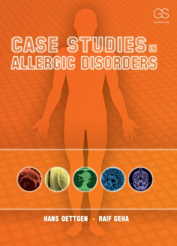 case studies in immunology Get this from a library case studies in immunology : a clinical companion [fred s rosen raif s geha] -- presents forty-two real clinical cases that illustrate, in a clinical context, essential points about the mechanisms of immunity, as well as describe and explain some of the immunological problems.