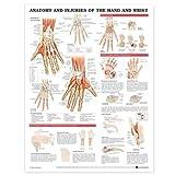 Anatomía y lesiones de la mano y muñeca gráfico anatómico