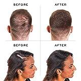 Nanogen Keratin Thickening Hair Fibres, 30 g, Medium Brown