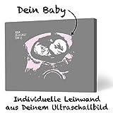 Ultraschallbild auf Leinwand   Ideal als Weihnachtsgeschenk für Mamis, Eltern und in der Schwangerschaft (30 x 20, hellgrau/rosa)