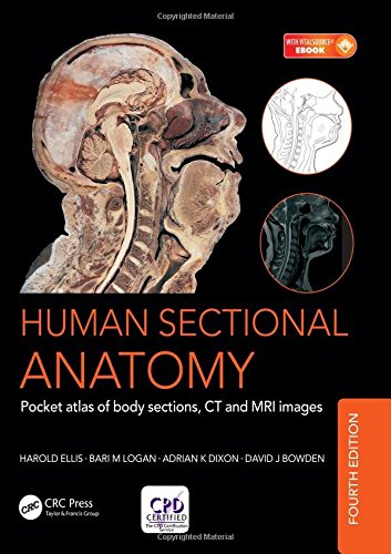 Human Sectional Anatomy: Pocket atlas of body sections, CT and MRI images, Fourth edition por Adrian Kendal Dixon