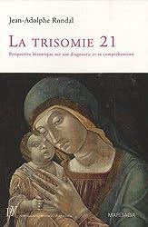 La trisomie 21 : Perspective historique sur son diagnostic et sa compréhension