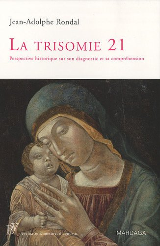 La trisomie 21 : Perspective historique sur son diagnostic et sa comprhension