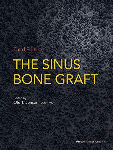 The Sinus Bone Graft: Third Edition (English Edition)