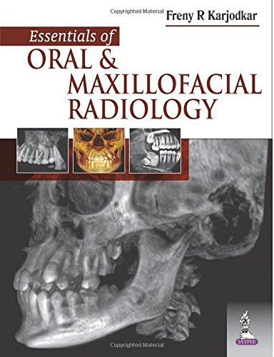 Essentials of Oral and Maxillofacial Radiology by Freny R. Karjodkar (2014-07-31)