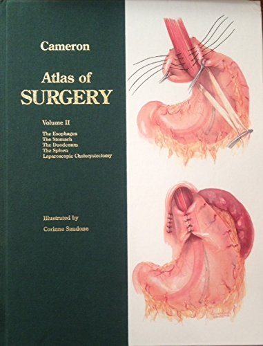 Atlas of Surgery: The Esophagus, the Stomach, the Duodenum, the Spleen, Laparoscopic Cholecystectomy