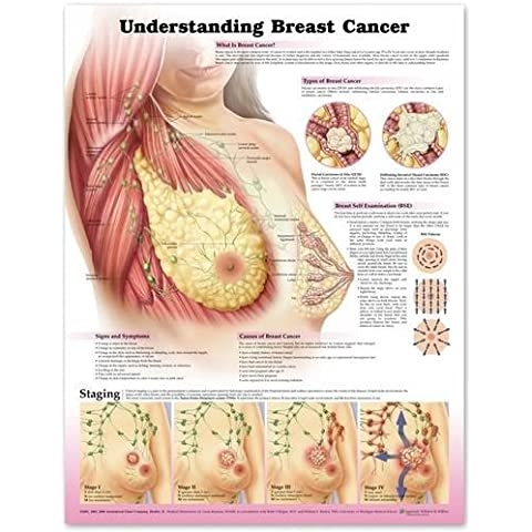 Understanding Breast Cancer - Breast Cancer Poster