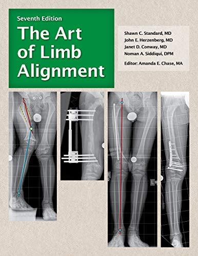 The Art of Limb Alignment (English Edition)