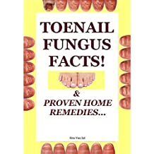 Nail Fungus Facts!: & Proven Home Remedies (English Edition)