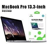 Lention Clear Screen Protector Bildschirmschutz für MacBook Pro (Retina, 13 Zoll, Ende 2012 bis Anfang 2015) - Modell A1425 / A1502, HD-Schutzfolie mit hydrophober oleophober Beschichtung