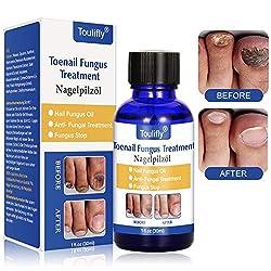 Nagelpolitur,Nagel Behandlung, Nagelpflege pflegend,Zehennägel und Nagelpflege für gesunde Fuß und Hand