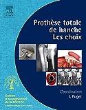 PROTHESE TOTALE DE HANCHE NP
