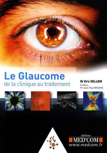 Le glaucome : De la clinique au traitement