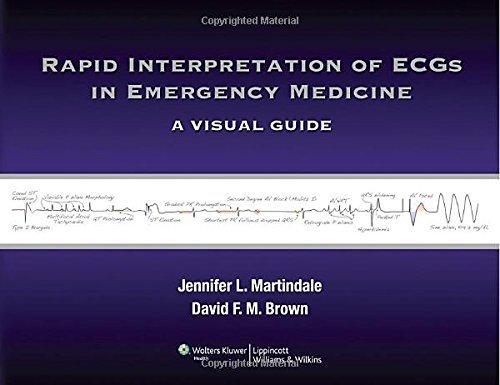 Rapid Interpretation of ECGs in Emergency Medicine: A Visual Guide 1st Edition by Martindale MD, Jennifer L, Brown MD, David F.M. (2012) Paperback