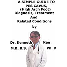 A  Simple  Guide  To  Pes Cavus, (High Arch Foot)  Diagnosis, Treatment  And  Related Conditions (A Simple Guide to Medical Conditions) (English Edition)