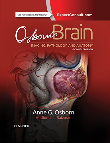 Osborn\'s Brain E-Book (English Edition)