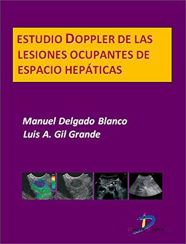 Descargar Libro Estudio Doppler de las lesiones ocupantes de espacio hepáticas  (Este capítulo pertenece al libro Tratado de ultrasonografía abdominal) de Manuel Delgado Blanco