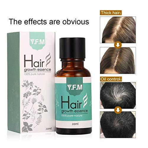 Haarwachstums Serum, Y.F.M Anti-Haarausfall Serum, Schnelle Haarwachstum Essenz, Nährende Essenzen für Haarpflege, stärkt Haarwurzeln und fügt natürlichen Glanz, 20ml