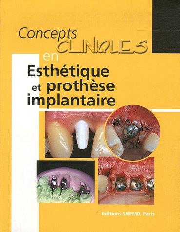 Concepts cliniques en Esthétique et prothèse implantaire