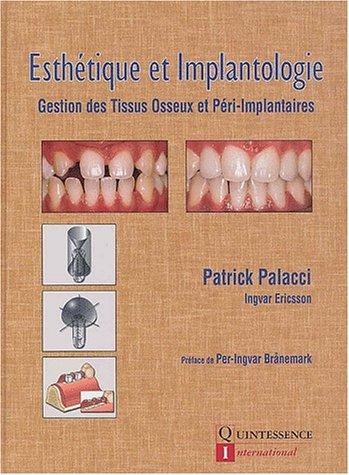 Esthétique et implantologie. Gestion des tissus osseux et péri-implantaires