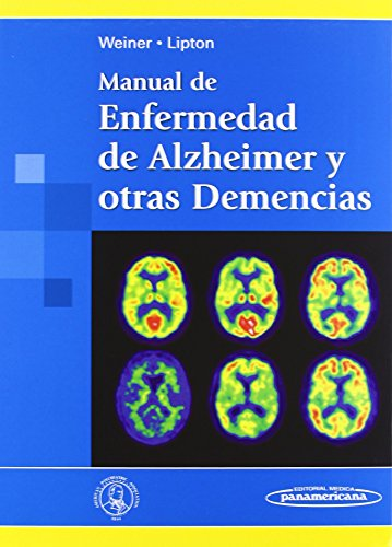 Manual de Enfermedad de Alzheimer y otras Demencias de Myron Weiner MD (8 jun 2010) Tapa blanda
