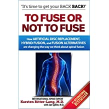 To Fuse or Not to Fuse: How Artificial Disc Replacement, Hybrid Fusion, and Fusion Alternatives are Changing the World of Spinal Fusion (English Edition)