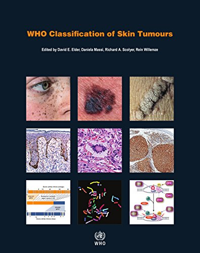 Who Classification of Skin Tumours par International Agency for Research on Cancer
