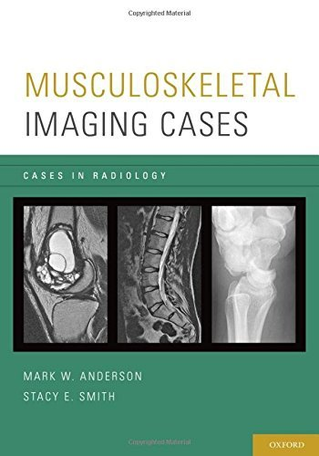 Musculoskeletal Imaging Cases (Cases in Radiology) by Mark W. Anderson (2013-10-28)