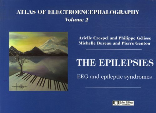 Atlas Of Electroencephalography Volume 2. The Epilepsies    Eeg And Epileptic Syndromes