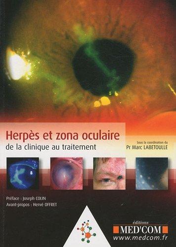 Herpès et zona oculaire : De la clinique au traitement par Marc Labetoulle