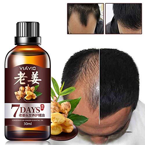 Cheveux croissance liquide, 30Ml gingembre cheveux repousse cheveux résistant à la perte de l'huile germinal anti vieillissement anti-cheveux perte rapide puissant soins capillaires huile essentielle