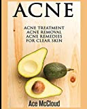 Acne: Acne Treatment: Acne Removal: Acne Remedies for Clear Skin