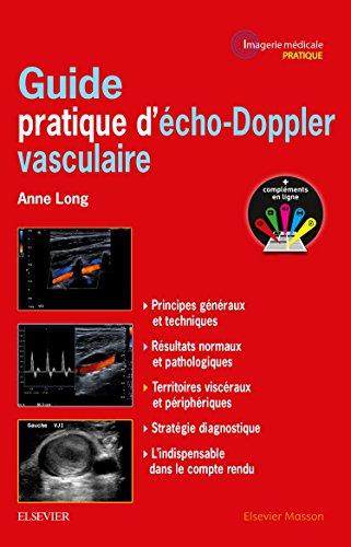 Guide pratique d'écho-Doppler vasculaire