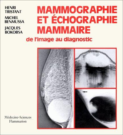 Mammographie et échographie mammaire: De l'image au diagnostic