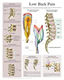 Low Back Pain e-chart - Quick reference guideLow Back PainSchematic Demarcation of DermatomesAnatomical description of the Lumbar SpineOsteoarthritisSpinal StenosisDisc CrushingCompression FractureMultiple MyelomaSpondylolysis and SpondylolisthesisHe...