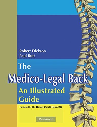The Medico-legal Back: An Illustrated Guide por W. Paul Butt epub