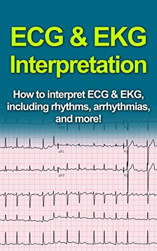 ECG & EKG Interpretation: How to interpret ECG & EKG, including rhythms, arrhythmias, and more! (English Edition)