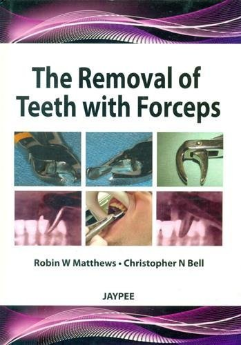 The Removal of Teeth with Forceps by Robins W., Ph.D. Matthews (2012-10-31)